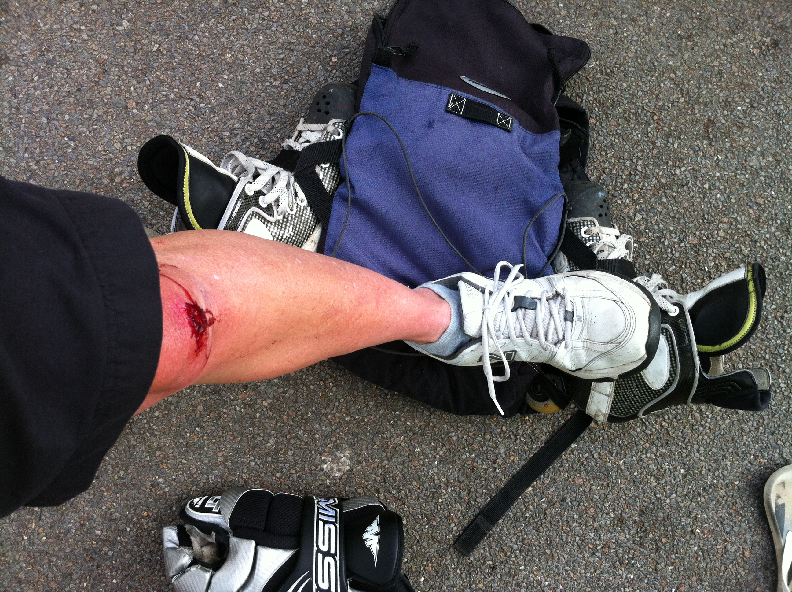 Roadrash from hockey